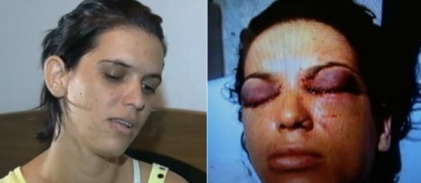 Mulher que teve olhos furados pelo ex-marido consegue guarda do filho