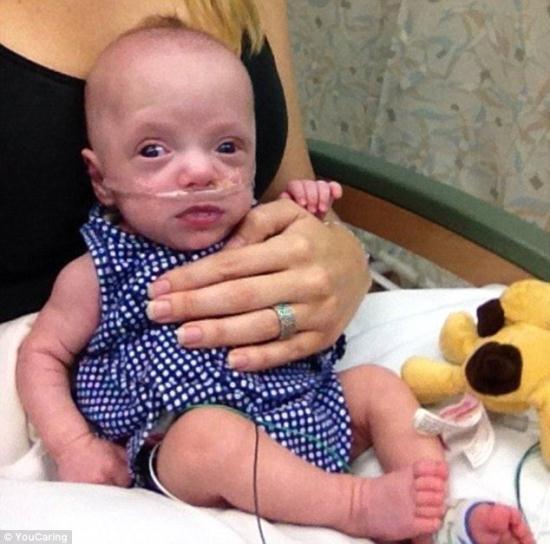 Bebê, que nasceu do tamanho de uma lata de refrigerante, sobrevive