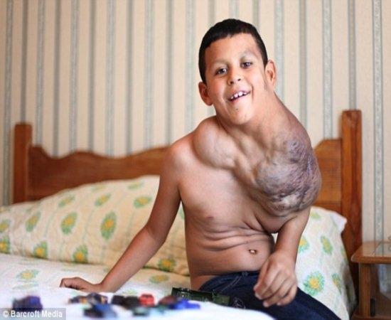 Garoto de 10 anos com terr咩el tumor no pesco輟 pode ser curado com Viagra