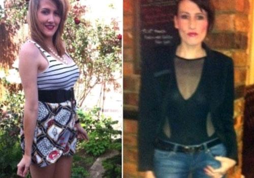 Síndrome rara faz mulher ter medo de comer e chegar aos 35 kg