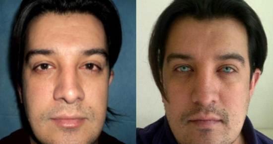 Cresce o n伹ero de cl匤icas americanas que oferecem cirurgia para mudar a cor dos olhos