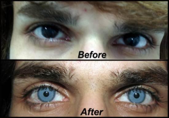 Cresce o número de clínicas americanas que oferecem cirurgia para mudar a cor dos olhos