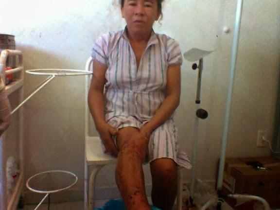 Marido agride a esposa com golpes de facão e é preso no Piauí
