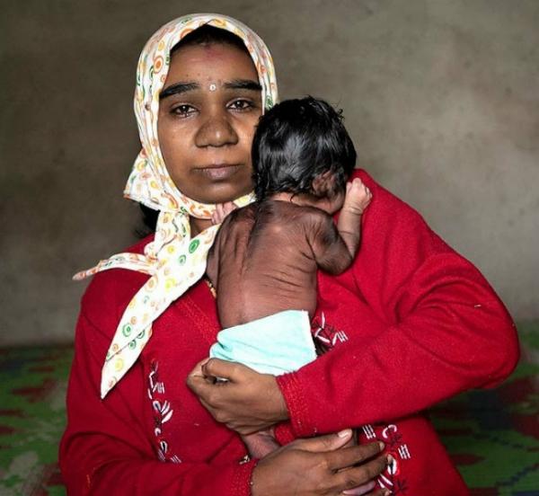 Com Síndrome de Lobisomem, menina indiana nasce coberta de pelos