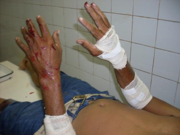 PI-113: Motoqueiro se choca com animal e sofre várias escoriações pelo corpo