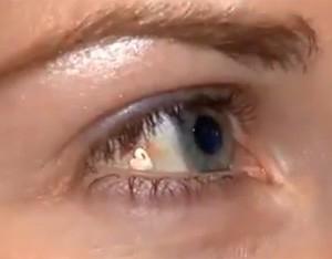 Jovem nos EUA gasta R$ 6,9 mil para implantar joia de platina no olho