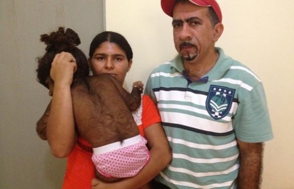 Família busca ajuda para menina de 2 anos com corpo coberto de pelos