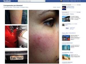 Jovem é agredida no trânsito: