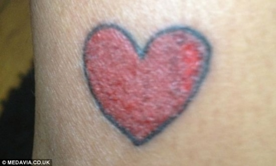 Mulher teve terrível reação alérgica ao fazer uma tatuagem