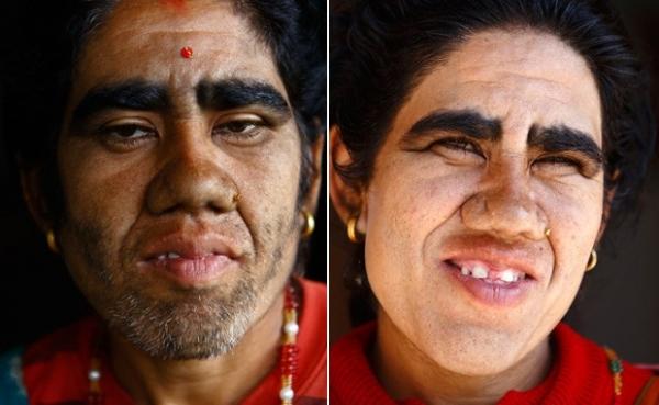 Mãe e filhos do Nepal tratam