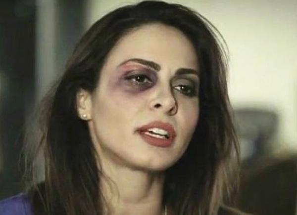 Alinne Rosa esclarece hematomas no rosto: campanha contra a violência