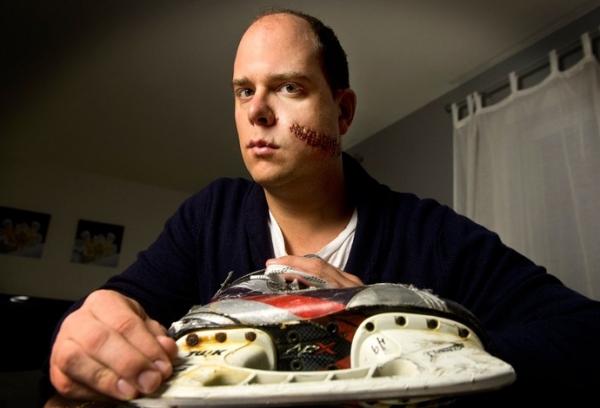 Cena forte: atleta do hóquei leva corte profundo no rosto e recebe 50 pontos