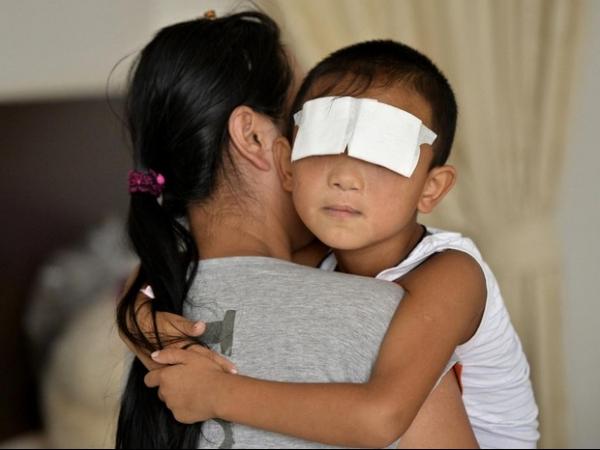 Menino que teve olhos arrancados na China ganha próteses que se mexem