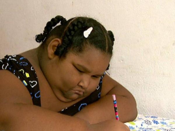 Família busca solução para caso de menina de 9 anos que pesa 113 kg