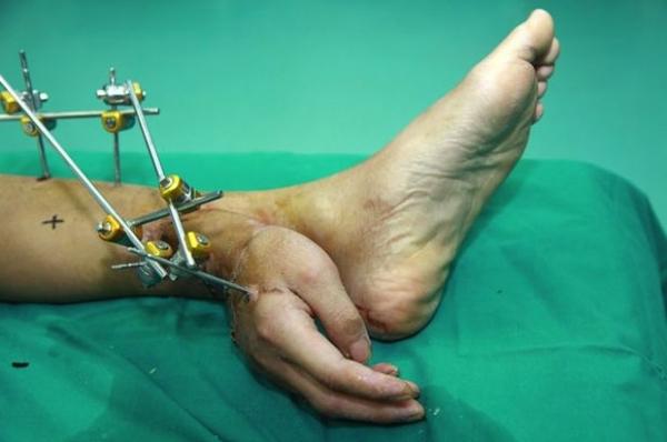 Médicos enxertam mão de paciente no tornozelo para evitar que ele perdesse membro