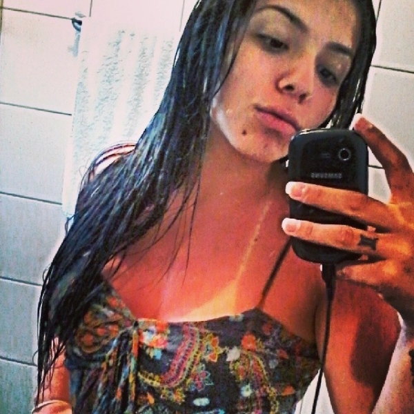 Petra Mattar posta foto em que aparece bem vermelha após tomar sol