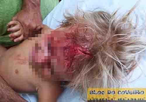 Cocal: Criança sofre acidente e se machuca durante brincadeira