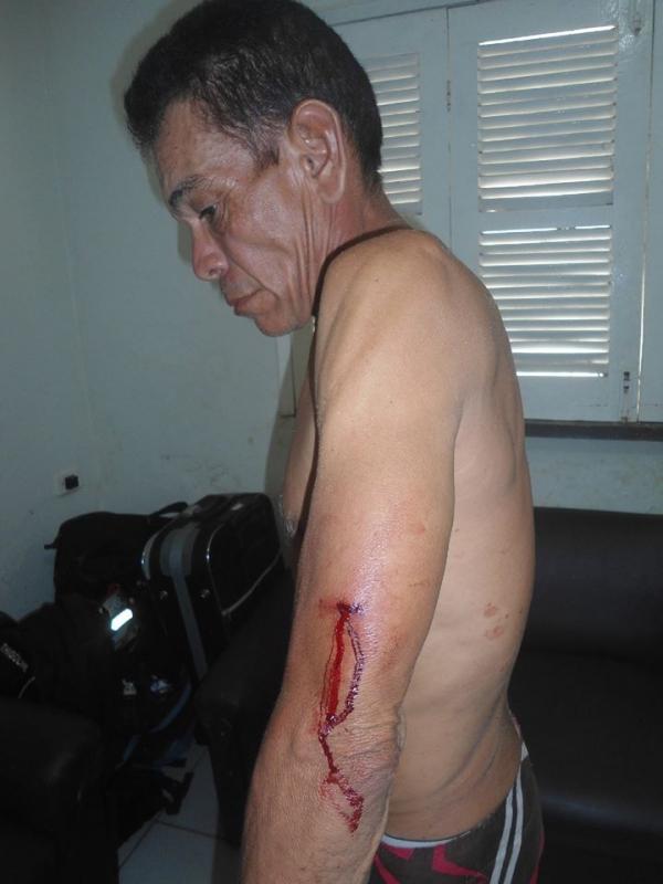 Altos: Homem é esfaqueado por concunhado após discussão