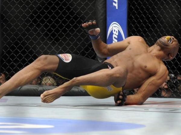 Anderson Silva sofre fratura violenta na tíbia e Chris Weidman mantém cinturão em revanche