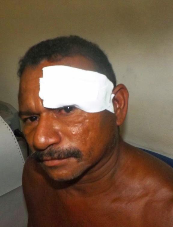 Após flagrar esposa na rede fazendo sexo com desconhecido, marido ateia fogo na própria casa e corta rosto de policial