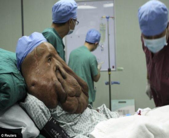 Homem Elefante passa por mais uma cirurgia para retirar 1,5 Kg de tumor do rosto