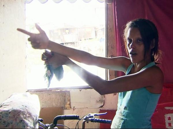 Siameses se recuperam de cirurgia para colocar expansores, em Goiânia