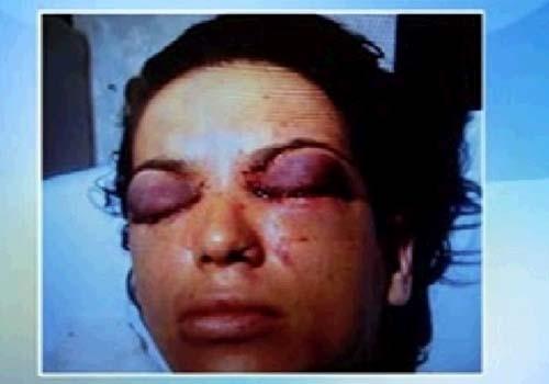 Mulher que teve olhos perfurados pelo ex-marido já passou por oito cirurgias
