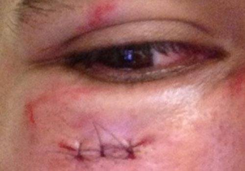 Choque com auxiliar faz Emerson levar três pontos sob o olho direito; árbitro deve parar um mês