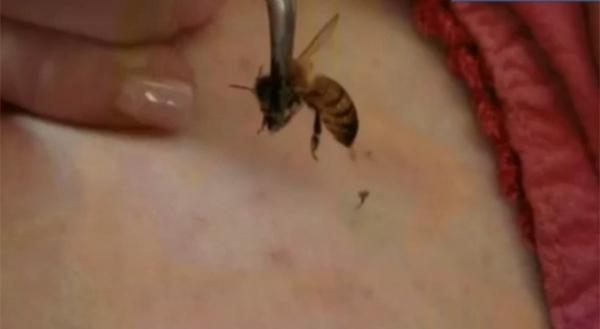 Americana viciada em picadas de abelha leva 15 ferroadas por dia