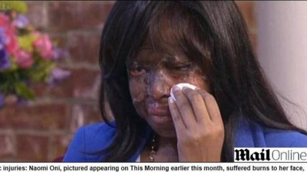 Polícia desconfia que britânica atirou ácido no próprio rosto e depois simulou ataque