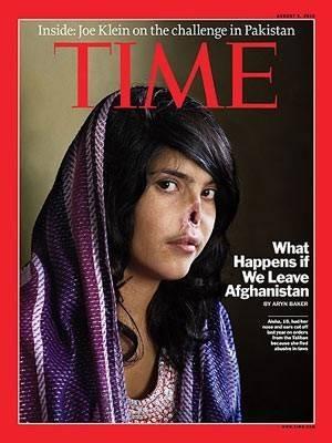 Afegã que teve rosto mutilado pelo marido mostra o resultado da cirurgia reconstrutora