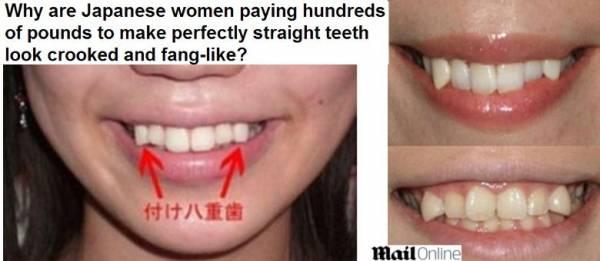 Nova moda no Japão é ter dentes de vampiro