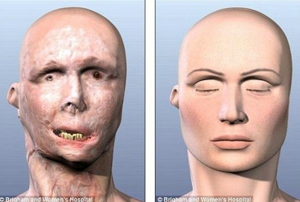 Mulher queimada pelo marido consegue transplante facial