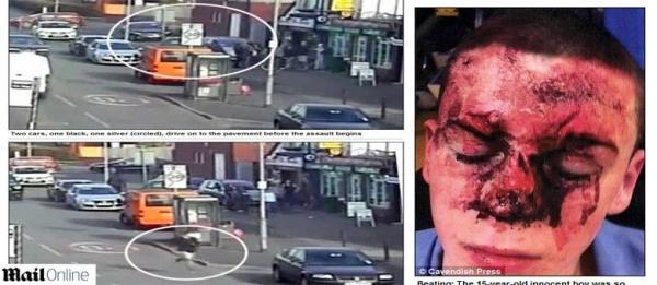 Jovem de 14 anos é agredido por gangue e fica com rosto desfigurado