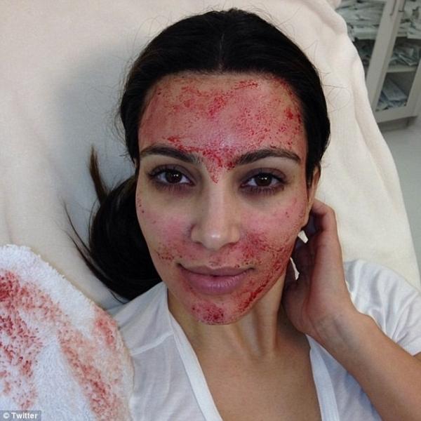 Kim Kardashian faz procedimento estético bizarro