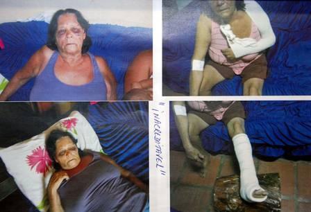 Rapaz é preso após surra na avó da esposa por causa de cachorros