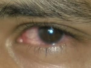 ?Cheguei a pensar que ia perder a visão?, diz aluno agredido em trote
