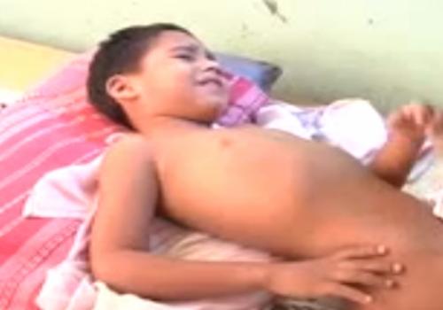 Após erro médico, garoto sofre com barra de ferro na perna