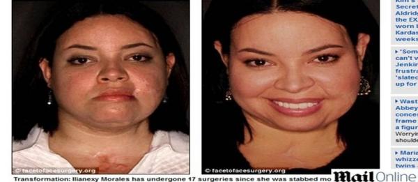 Mulher esfaqueada 100 vezes por ex-namorado recebe ?novo rosto? doado por médicos