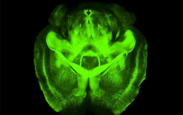 Estudo mostra técnica que permite enxergar o que há dentro do cérebro