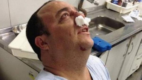 Enfermeiro fratura o nariz após socos de marido de paciente