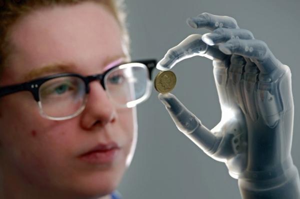 Jovem recebe prótese de mão que pode ser programada por iPhone