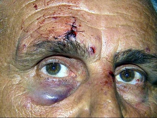 Motorista de ônibus é agredido em roubo de R$ 40: