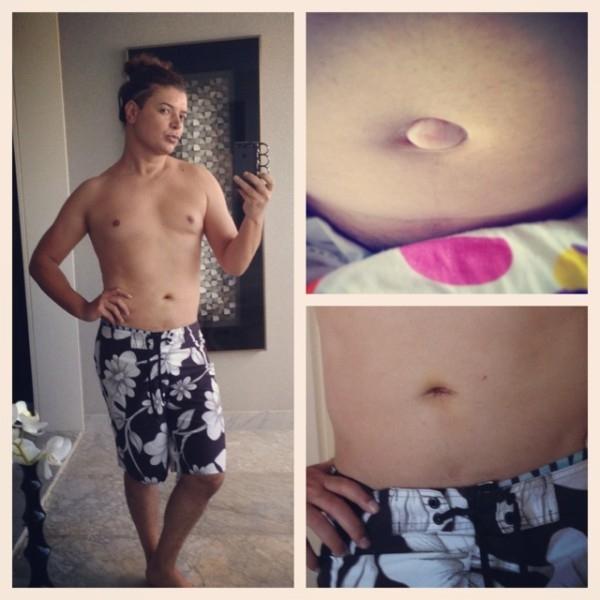 David Brazil posta imagem de antes e depois da cirurgia de hérnia umbilical