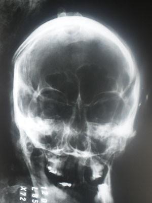 Corpo de Matsunaga deve ser enterrado hoje após  laudo não conclusivo