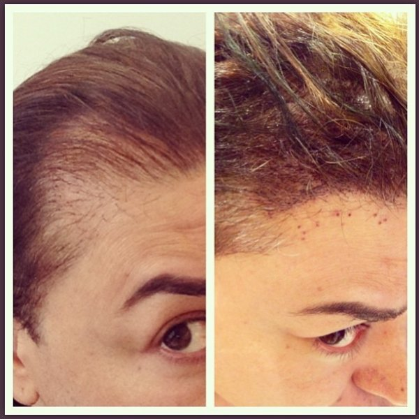 David Brazil mostra foto de implante de cabelo: