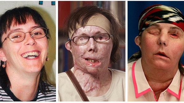 Mulher que ficou deformada após ataque feito pelo ex-marido recebe novo rosto em transplante