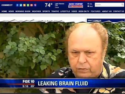Americano descobre que líquido cerebral
