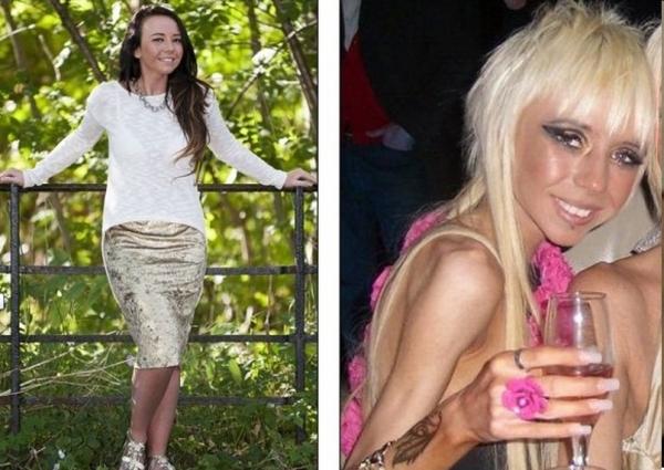 Casos chocantes: anorexia transforma vida de adolescentes em pesadelo