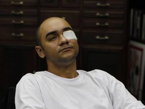 Fotógrafo ferido quer R$ 700 mil de indenização